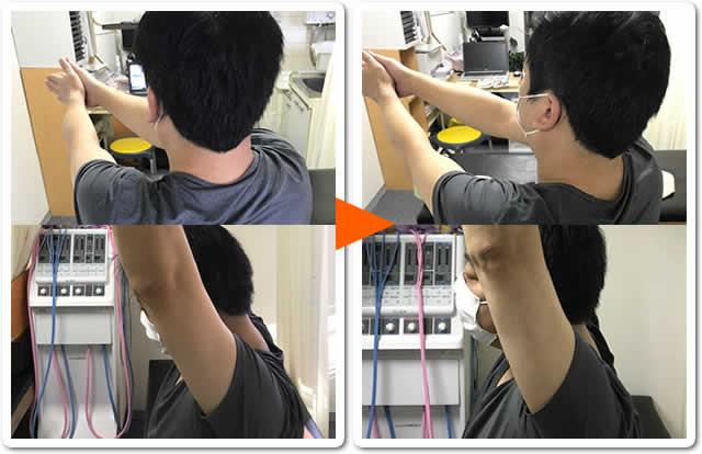 腰痛・背中の痛み・首肩こり